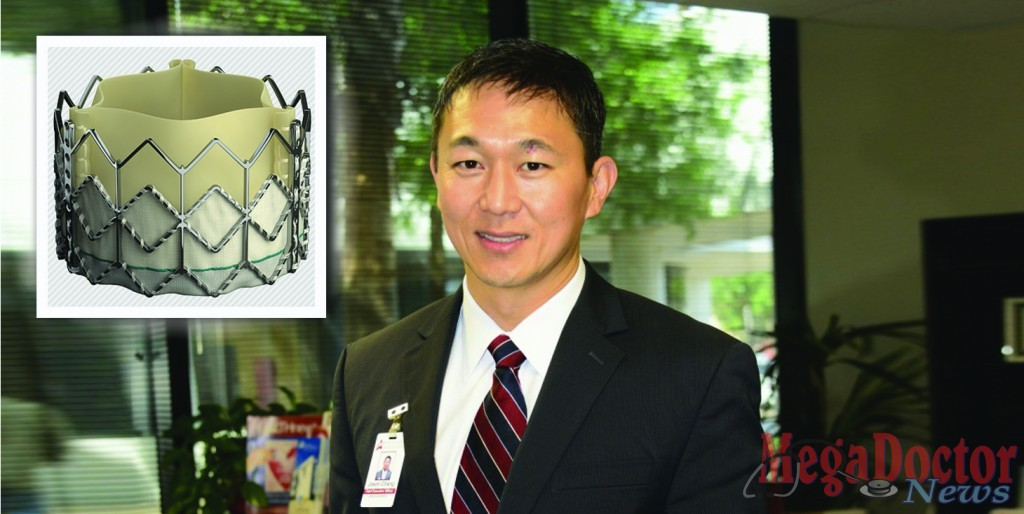 Jason Chang plans to set medical precedent at McAllen Heart Hospital Introducing by yearend heart valve replacement without open-heart surgery