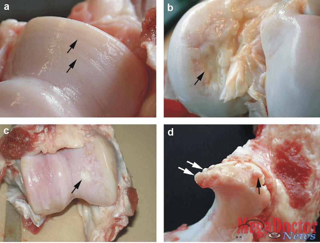 Ejemplos de cartílagos de cerdas dañados (a) cartílago erosionado, (b) cartílago ulcerado, (C) cartílago reparado y (d) formación osteofita (espuelas de hueso).
